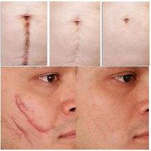 疤痕灵去除黑色素沉淀淡去手术凹凸增生伤疤修复膏祛痘印凝胶正品