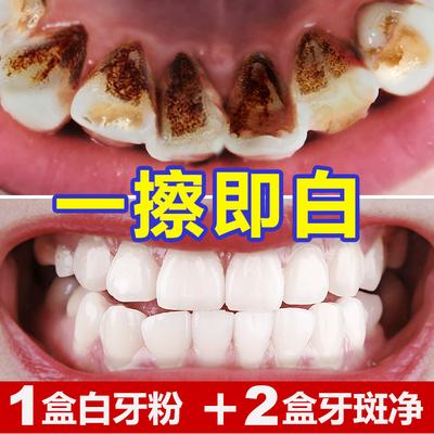 云南本草洗牙洁牙粉 牙齿美白速效去黄牙垢烟渍牙结石白牙素